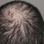 薄毛の髪型で頭頂部を目立たなくするには?スタイリングも重要要素